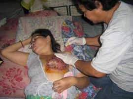kanker payudara1
